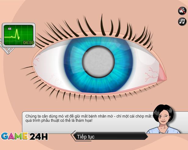 choi game phẫu thuật mắt